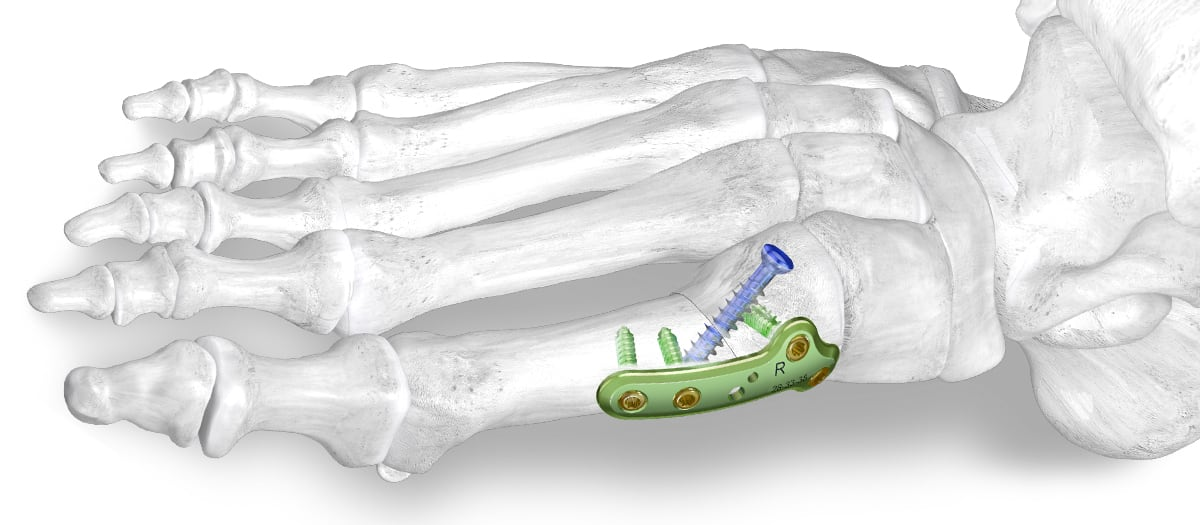 Paragon 28® launches PROMO™ Triplanar Hallux Valgus Correction System