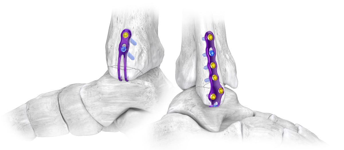 Gorilla® Ankle Fracture Plating System – Hook Plating System Launched 11.02.17