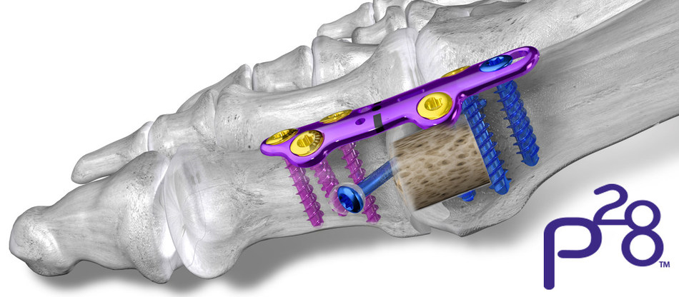 Paragon 28® Launches Unique Option for Revising a Failed Synthetic Cartilage Implant (SCI)
