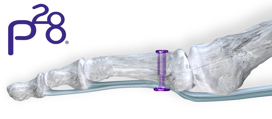 Paragon 28® Adds Larger Implant Option to Help Address Hallux Malleus in their First-of-its-kind Hammertoe and Plantar Plate Repair Solution – TenoTac® Soft Tissue Fixation System