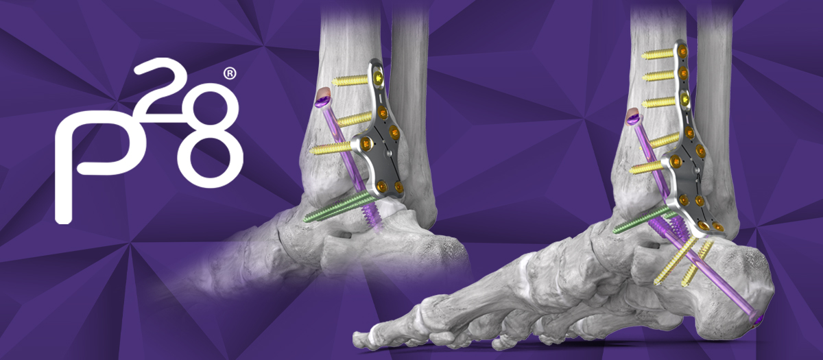 Paragon 28, Inc. Increases its Robust Ankle Fusion Plating Offering – Silverback™ Posterior Plating System Launched