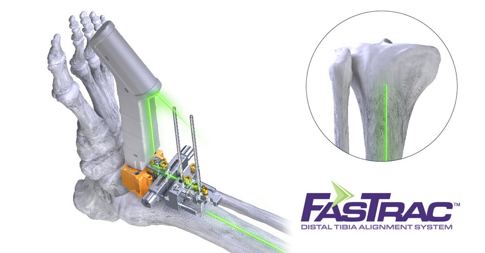 Paragon 28® Inc., Conducts the First Total Ankle Joint Replacement Surgery Utilizing Laser Alignment Technology